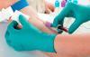 Androstendion badanie krwi
