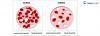 anemia diagnoza