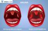 angina objawy